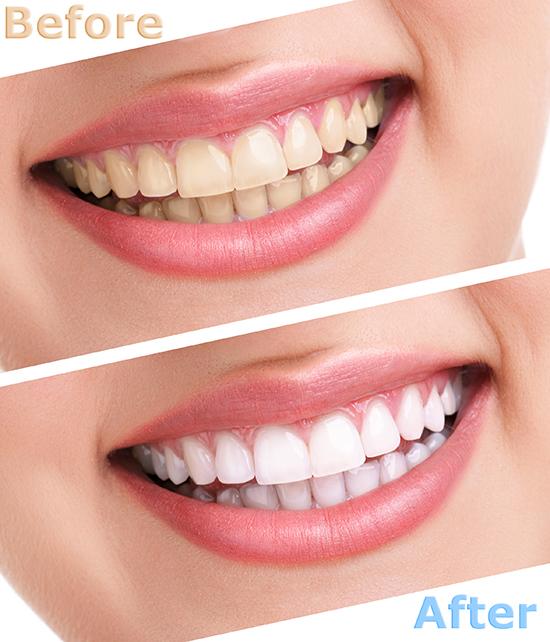 Albire dentara dr. Alex Szatmari