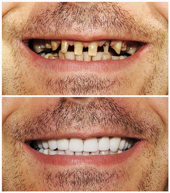 Protetica dentara dr. Alex Szatmari